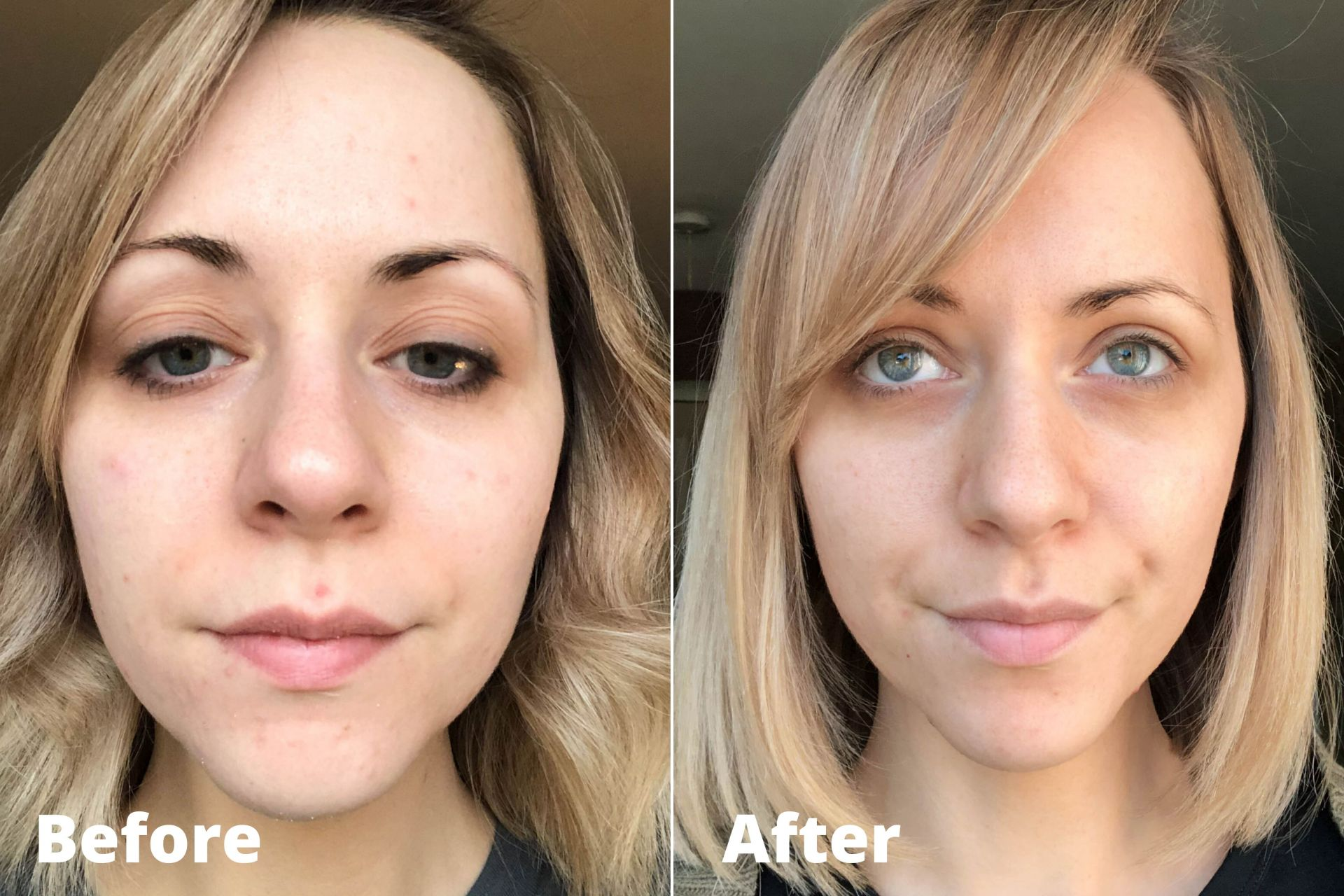 Before and after Murad retinol for 4 weeks